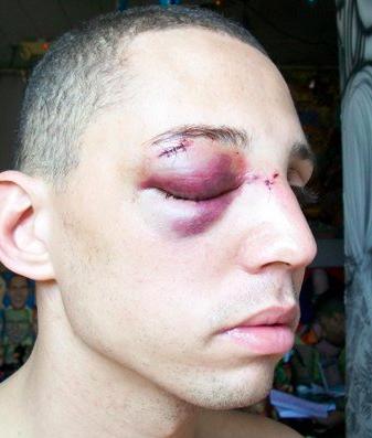 gay blog: greenwich village, gay bashing, attack, hate crime, gay news