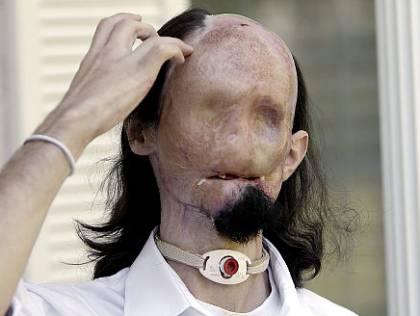 Gay blog: Dallas Wiens gets full face transplant