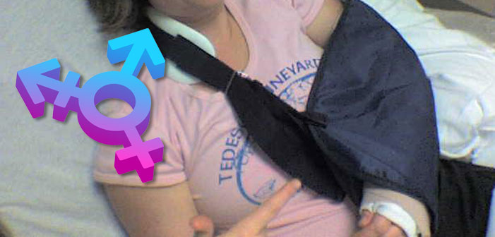 transgender, trans, LGBT, broken arm, health