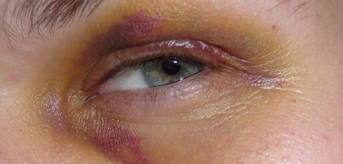 gay men attacked, black eye