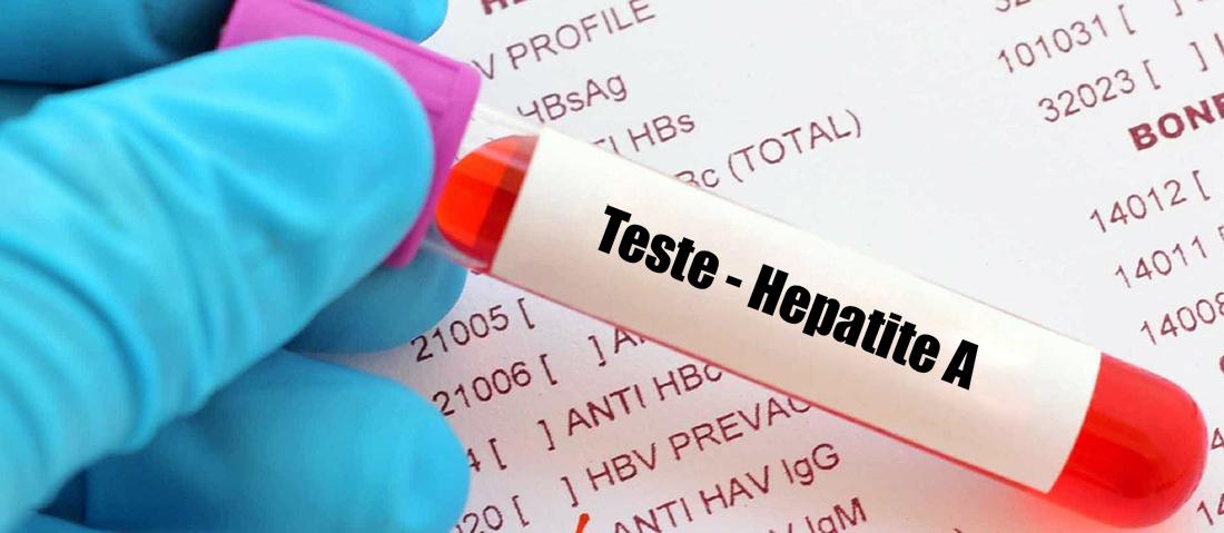 Paulistanos vivem surto de hepatite A com mais de 80% dos casos entre homens
