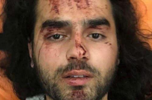Ativistas gays atacados