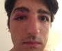 Agression homophobe à Paris: deux suspects arrêtés et placés en garde à vue