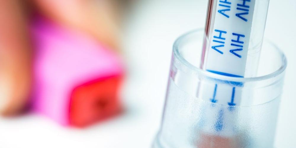 Autoteste de HIV chega ao SUS e contamos como conseguir