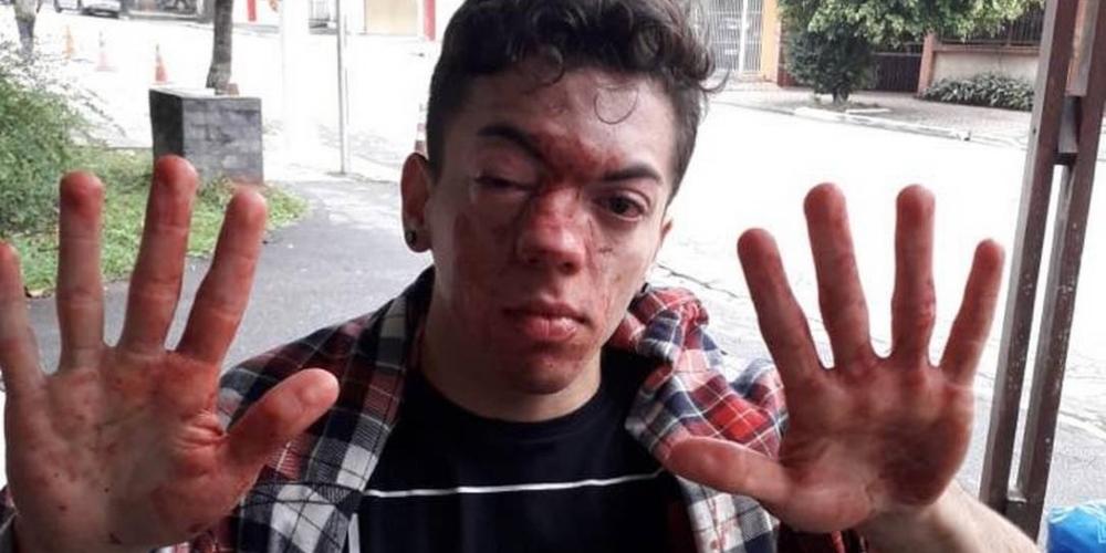 Jovem agredido é obrigado a sair do armário após ser espancado por motorista de ônibus