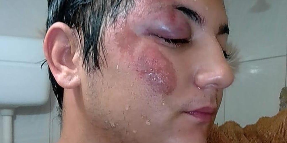 Vítima de homofobia é espancado por 4 homens em lanchonete no Ceará