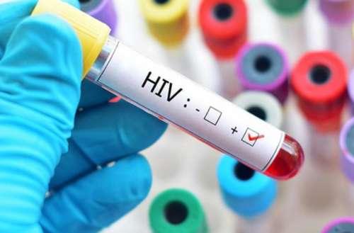 Novo tipo de vírus HIV é descoberto