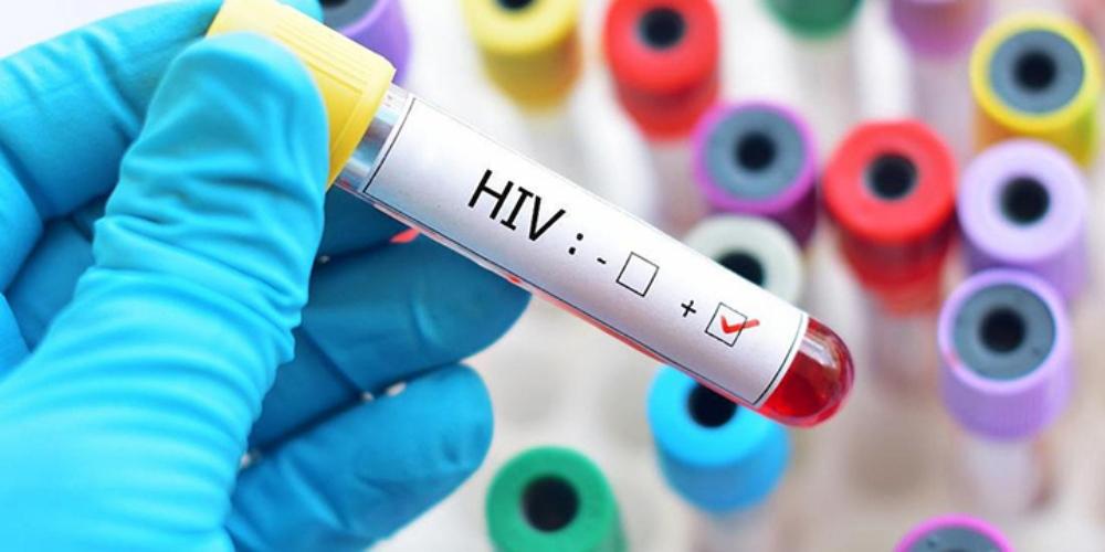 Novo tipo de vírus HIV é descoberto pela primeira vez em 20 anos